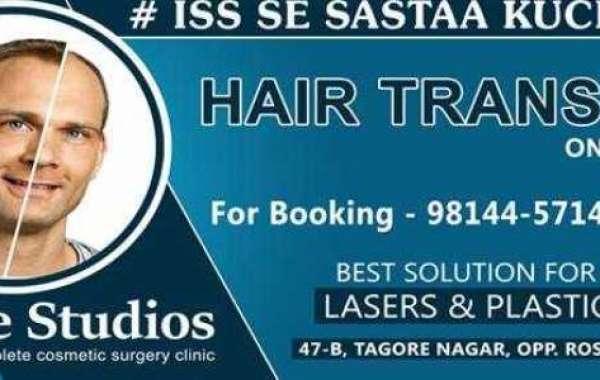 Profile Hair Transplant Centre - Ludhiana, Punjab